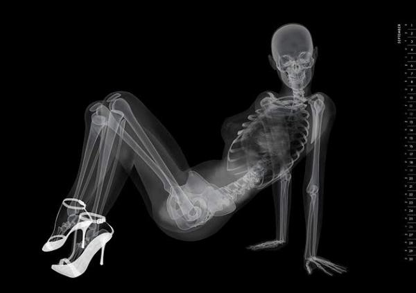 X-ray pinup